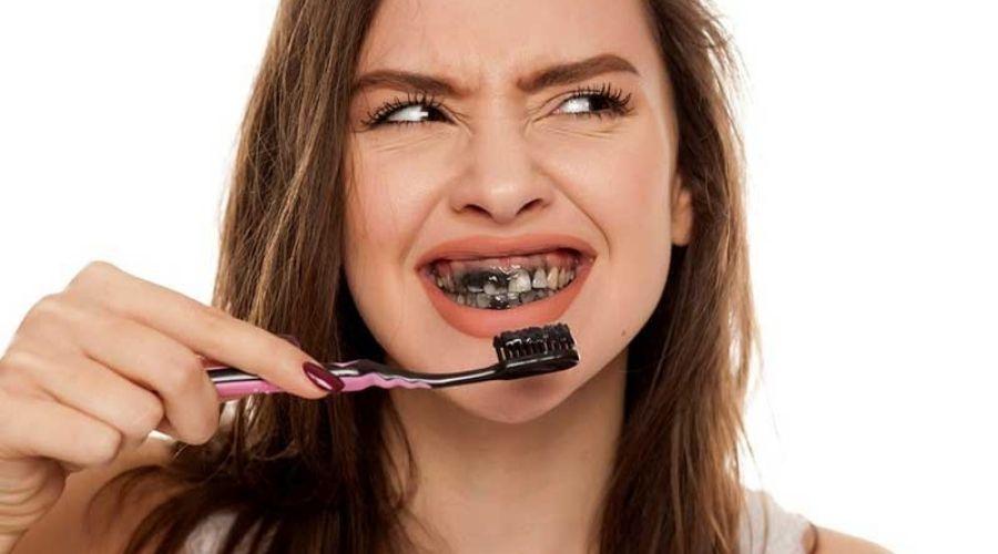 Ứng Dụng Tẩy Trắng Răng