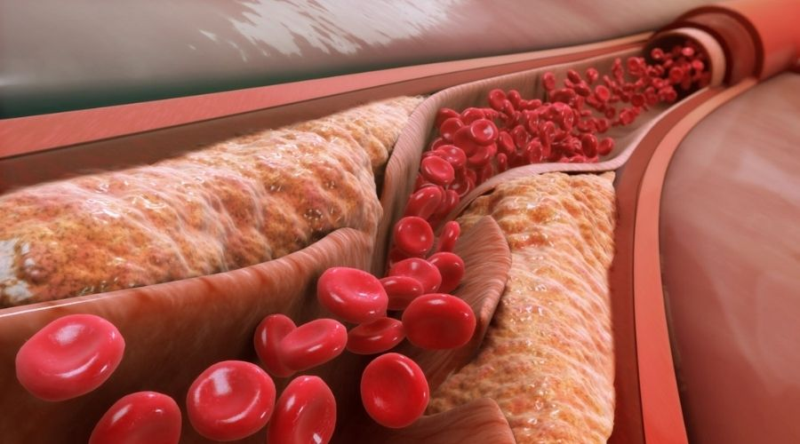Làm Giảm Lượng Cholesterol Trong Máu